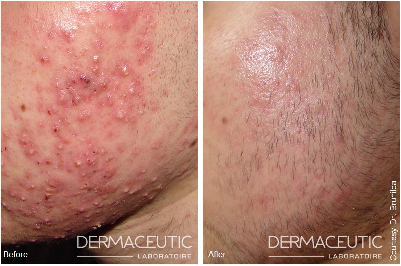 Traitement de l'acné ou des lésions acnéiques avec Maskpeel